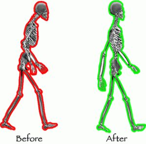 Stand Up Straight!: How to Improve Your Posture | Be Well Philly