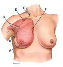 The presence of cancer cells within lymph nodes is known as lymph node involvement. Breastcancer.org can help you learn more.