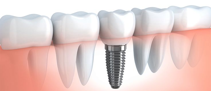 If you're looking for the best dental implants in Beverly Hills with a friendly environment, you have come to the right place. Brentwood Center For Cosmetic Dentistry offers dental implants in Beverly Hills CA. Dr. Nader Nikman DDS helps patients in Beverly Hills and surrounding areas to achieve the beautiful, healthy smiles. Our dental staff have the skill and experience to install dental implants in Beverly Hills.
