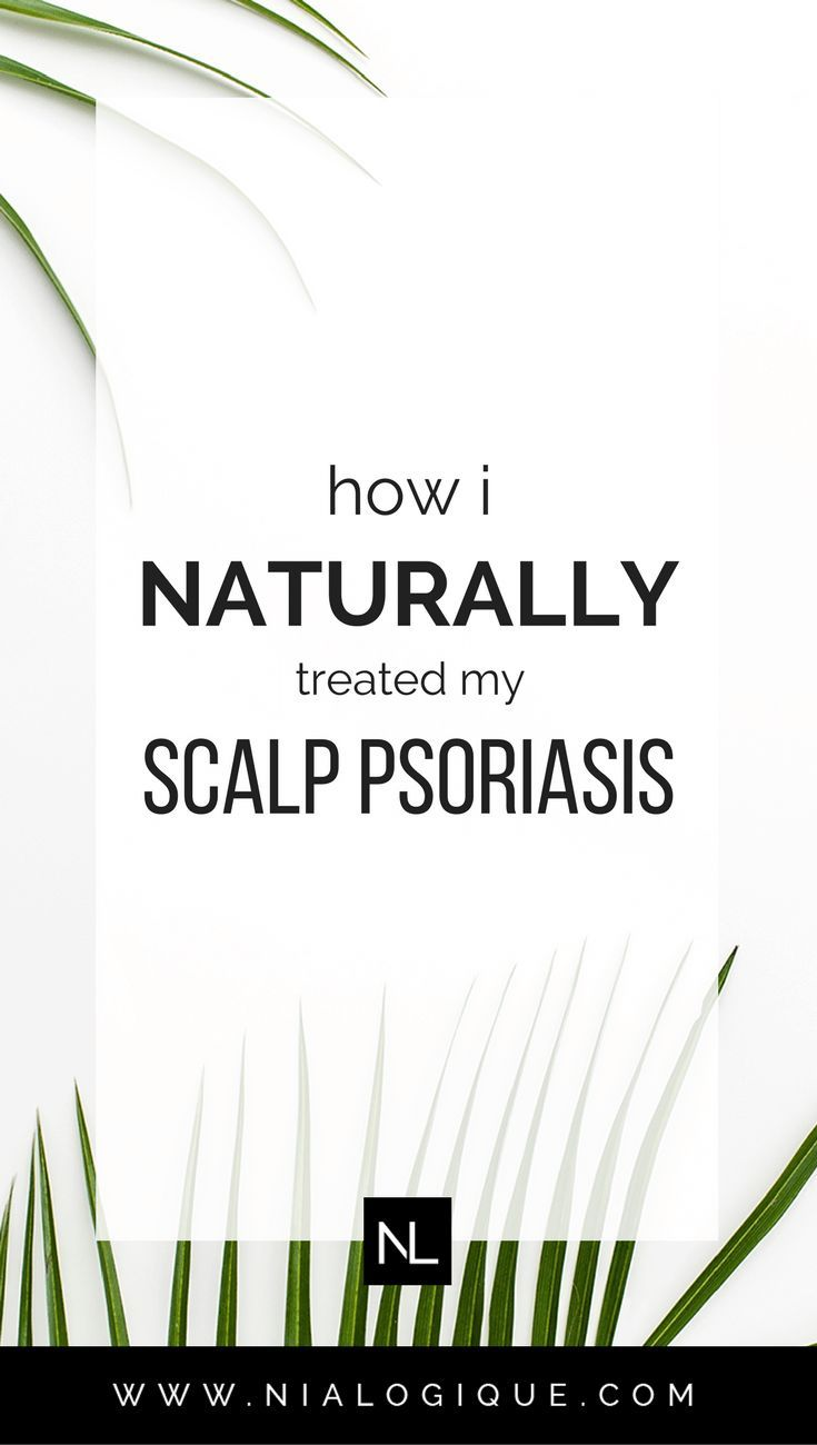 How I Treated My Scalp Psoriasis Using Natural Remedies