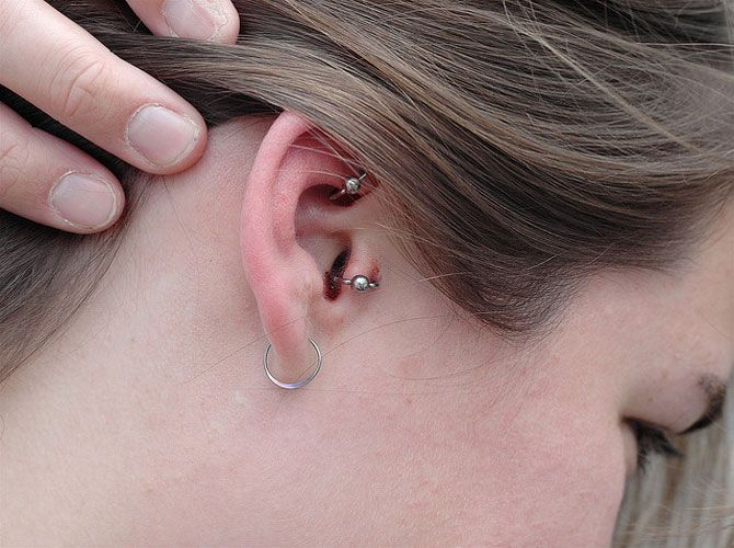 Nose piercing infections symptoms