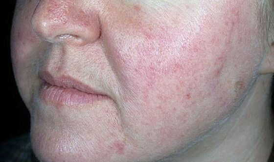 How to cure redness of pimples