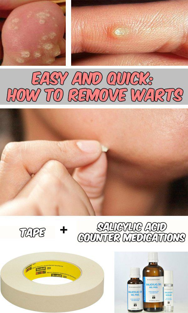 Easy and quick: How to remove warts