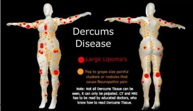 Dercum's disease