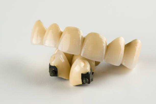 cermet tooth crowns