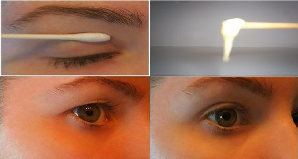 What is the 2 minute solution for sagging eyelids?