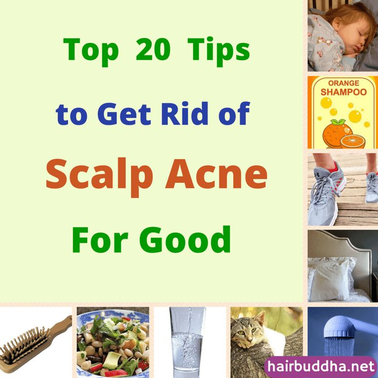 20 Tips To Get Rid of Scalp Acne For good