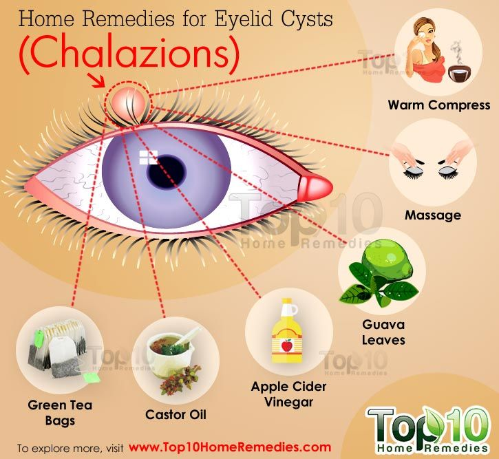 Castor oil has high anti-inflammatory properties that can help reduce pain and inflammation associated with an eyelid cyst. It can help bring down the size of a cyst quickly, which in turn means quick healing.