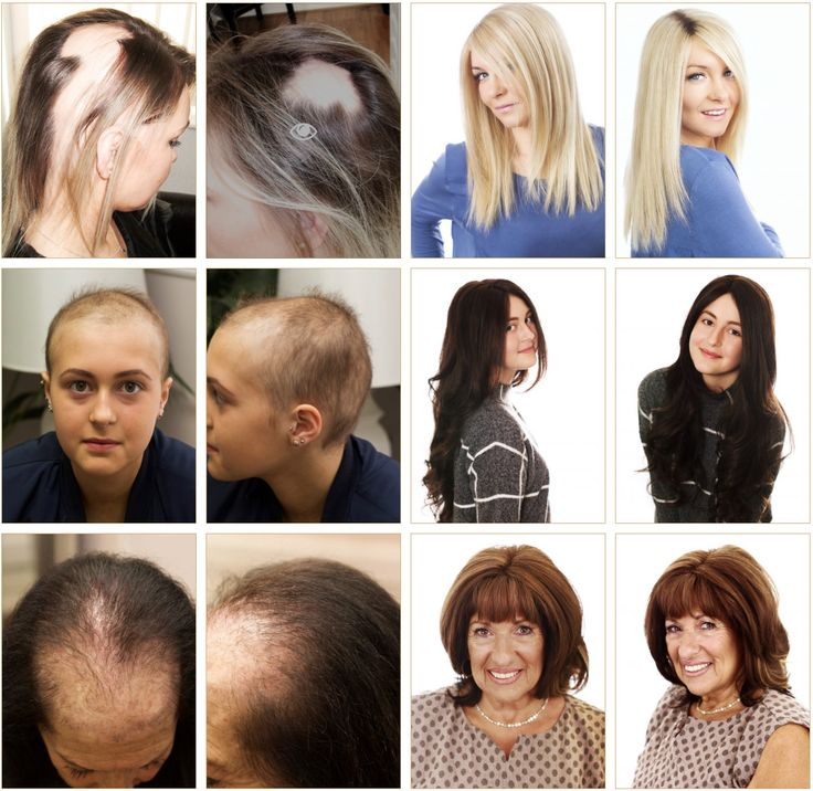 21 best before and after images on pinterest hair loss hair check out our new updated gallery to see beautiful before and after hair transformation photos taken pmusecretfo Gallery
