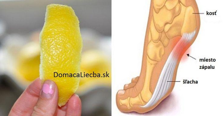 Tento trik s citrónovou kôrou odstráni bolesti a zápaly kĺbov, šliach a väzov