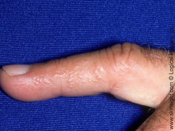Dyshidrotic Eczema  Eczema Causes, Eczema Pictures -3342