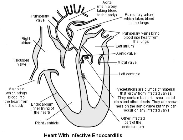 17 best images about my fighting father endocarditis on pinterest
