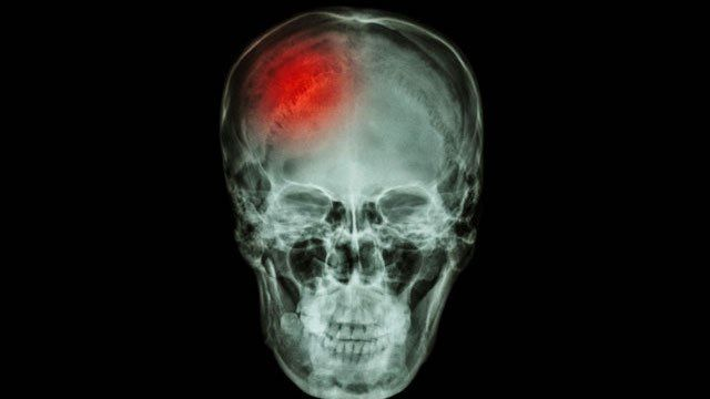 Taking any kind ofhead trauma is an awful thing to go through. When it results intraumatic brain injury, it opens up a whole host of issues. Including things you never thought of, like these: 3. …