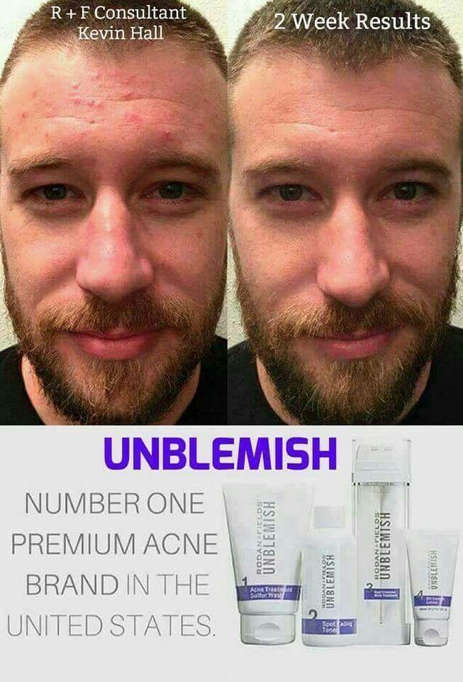 Men with acne using UNBLEMISH - Rodan + Fields