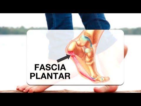 (6) La lesión más temida por los corredores, la fascitis plantar - YouTube