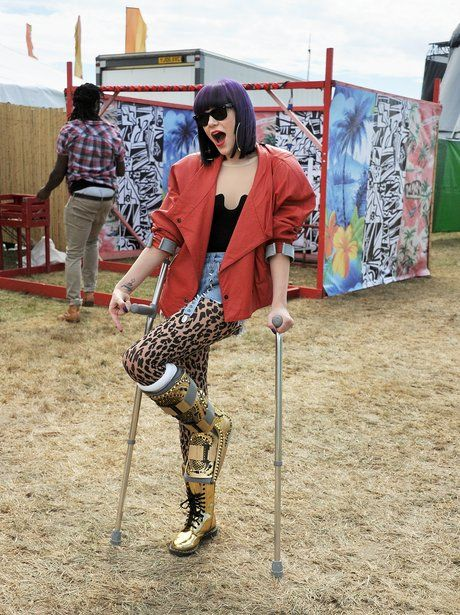 Jessie J, I have those boots!! (Not the cast boot, but the gold Doc Martens)