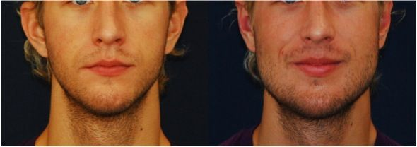 Lets talk about facial implants