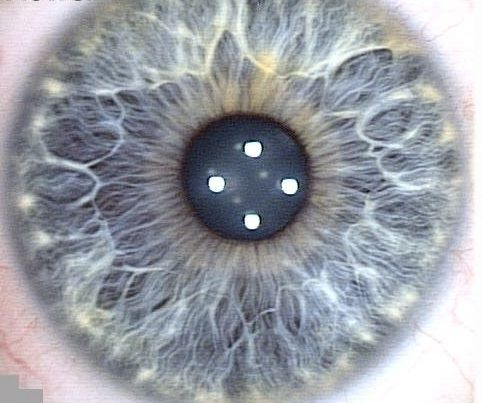 Eye Types & Iridology