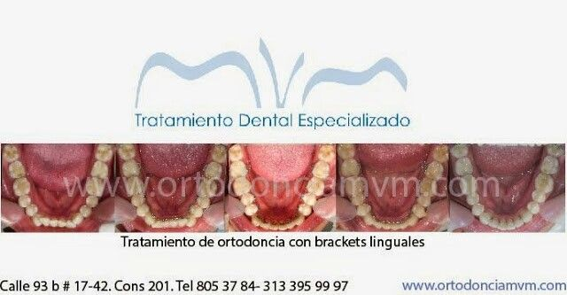 Ortodoncia invisible con brackets linguales El unico tratamiento absolutamente imperceptible. Los brackets van cementados en la cara interna de los dientes. #ortodonciamvm #bracketslinguales #lingualbraces #orthodontics #apiñamientodental #salud #belleza #sonrisa
