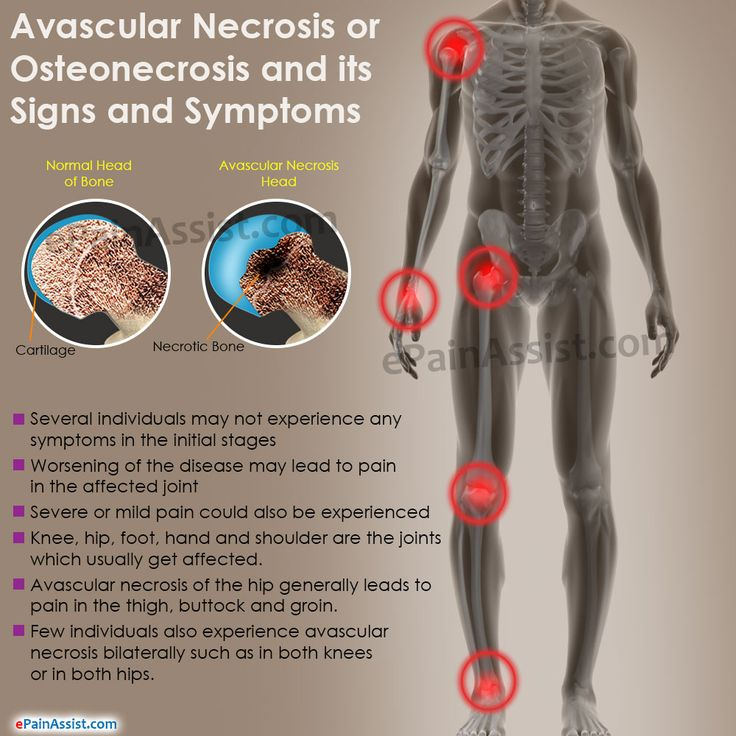 Avascular Necrosis signs and symptoms