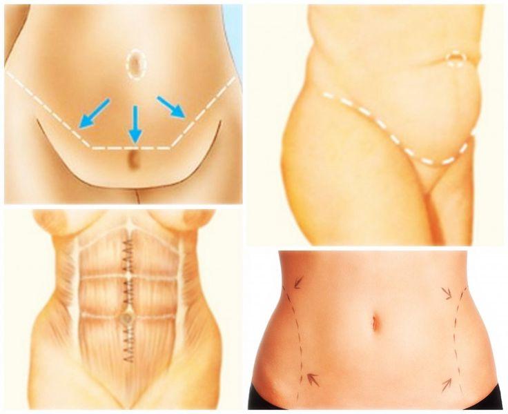 Tipo de Abdominoplastía, tips  http://retoqueestetico.com/tipos-de-abdominoplastia/  #tipos #de #abdominoplastía #tratamiento #tratar #mejorar #eliminar  #perfecta #salud #y #belleza #cuidado #cuidar #la #piel #mujer #en #forma #entre #mujeres #femenino #femenina #el #mejor #con #fitness #hematomas #saludable #sano #tips #consejos #trucos