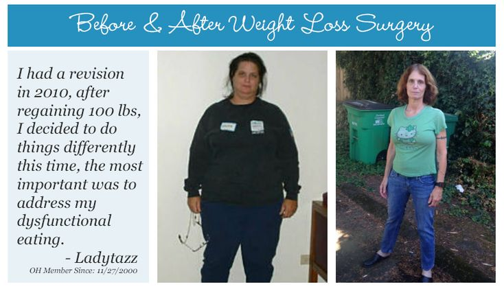 Today we're celebrating, OH Member Ladytazz, by sharing her before & after weight loss surgery photos!