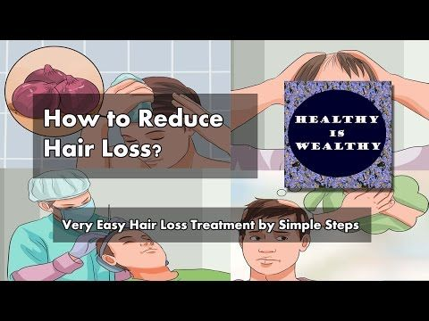 How to reduce Hair loss? Very Easy Hair Loss Treatment by Simple Steps -  How To Stop Hair Loss And Regrow It The Natural Way! CLICK HERE! #hair #hairloss #hairlosswomen #hairtreatment Hair loss Treatment is not a big problem any more. It is normal to lose 50 to 100 hairs a day. If you are losing more hair, you might be experiencing hair loss. Excessive hair loss, or... - #HairLoss