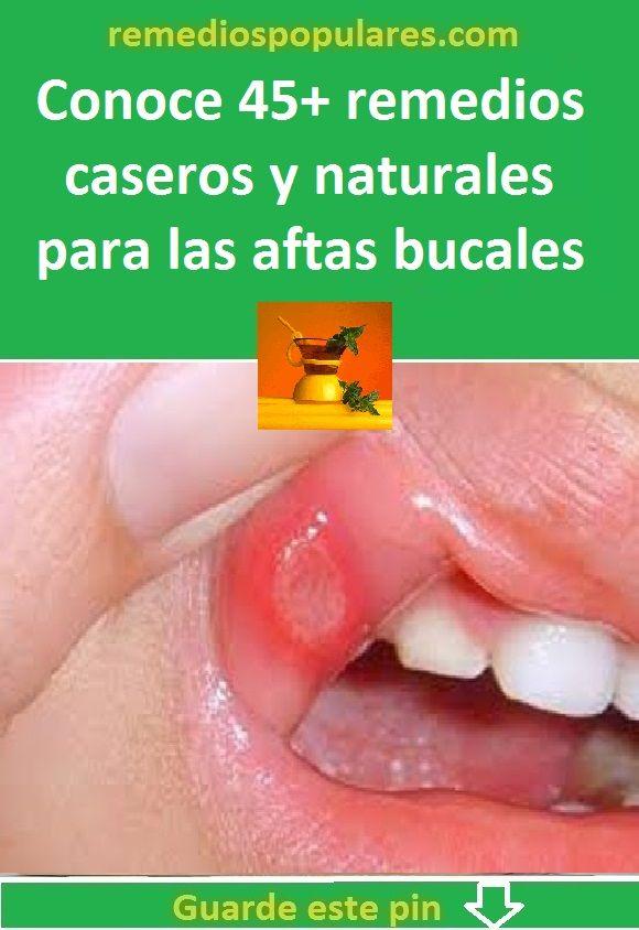 remedios caseros para las llagas de la boca