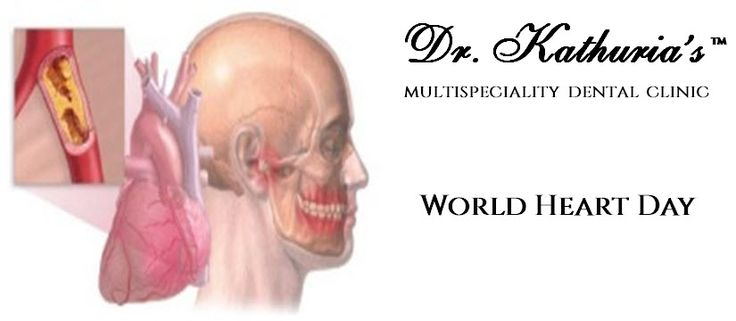 #WorldHeartDay Do u know??? Heart pain can radiates to jaws and #teeth.