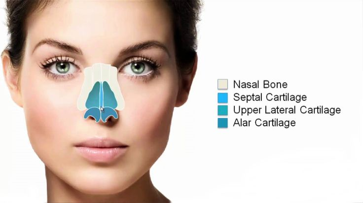 Deviated septum surgery get your nose straightly pointed