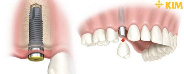 Dịch vụ trồng răng Implant nào tốt nhất và đáng tin cậy nhất hiện nay?