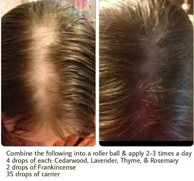Wonderful Young Living Essential Oils: Hair