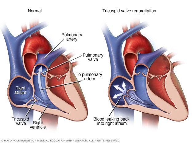 tricuspid valve regurgitation - Google Search