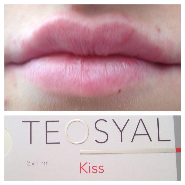 Teosyal lip filler, lip augmentation  just been done.  https://www.facebook.com/pages/Elixir-Aesthetics/657997570912440