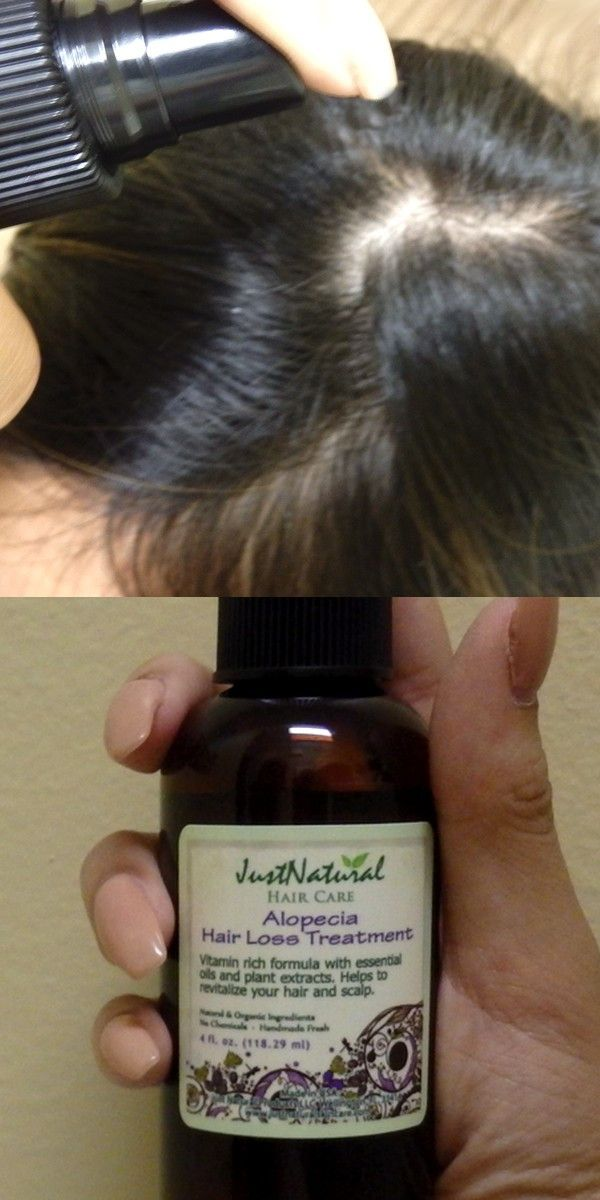 I am so happy, that I stopped non-natural products. I can really feel the difference. I have been using the alopecia hair loss, in just 4 months' new hair is covering the bald spots. My new baby hair is growing much healthier. The thicker hair products are nice too because it makes your hair get that thicker feel that everyone wants. So glad my hair is coming back, no longer thinning with the help of these products!