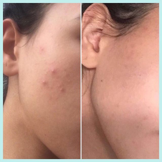 This is exactly 1 Week !!! ⠀ I rarely get acne but when I do, it's stubborn and literally impossible to get rid of !! ⠀I used the Control and Lite Moisturiser and Spot treatment twice a day for 7 days!!  Skin i sglowing and soft I used the Cleanser, Control, Lite Moisturiser and Spot Treatment twice a day for 7 days !! ⠀ Skin is glowing and soft and best its ev