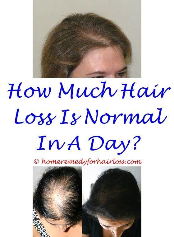 Pin On Hair Loss Remedy