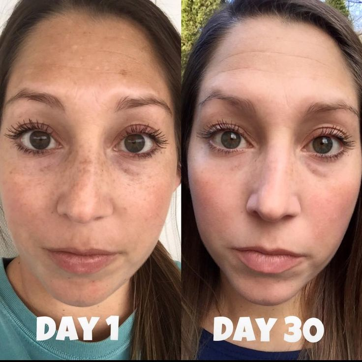 Rodan+Fields Reverse Regimen will wipe the slate clean!  It will reverse the sun damage on your skin and reverse the look of older age!   PM me to get started and you could see these kind of results in 30 days!