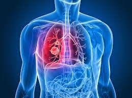 AIRLIFE te dice.  La neumonía es  una infección del pulmón caracterizada por la multiplicación de microorganismos en el interior de los alvéolos, lo que provoca una inflamación con daño pulmonar. Las causas de una neumonía ocurren cuando un germen infeccioso invade el tejido pulmonar. Estos gérmenes pueden llegar al pulmón por tres vías distintas: por aspiración desde la nariz o la faringe, por inhalación o por vía sanguínea.