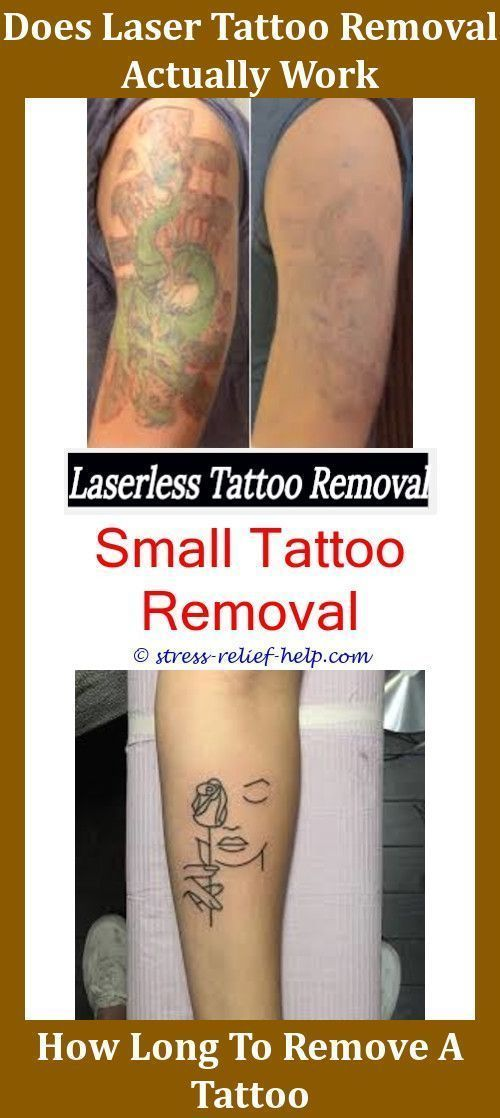 How Effective Is Tattoo Removal Does It Hurt To Get A Tattoo Removed ...