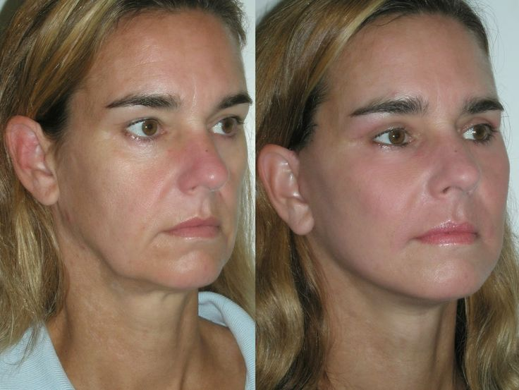 facial massage/exercise
