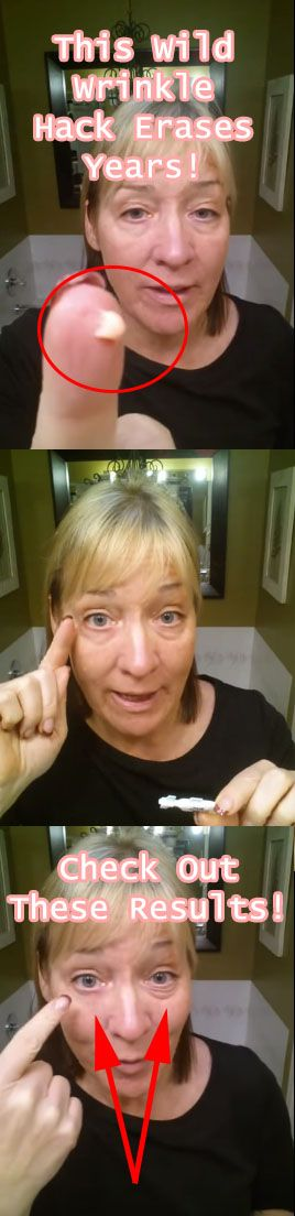 This video is amazing, I watched her eye bags disappear in under 2 minutes!