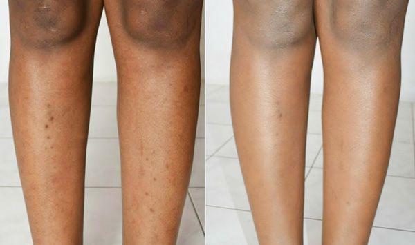 8 Möglichkeiten dunkle Flecken an den Beinen schn…