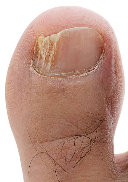 How Long Does It Take To Cure Toenail Fungus With Apple Cider Vinegar-Toe Fungal Infection Home Remedy