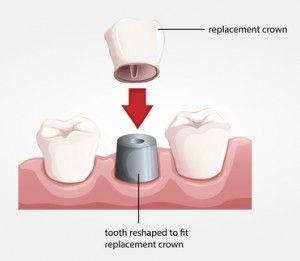 Dental crown procedure #FortLee #dentist