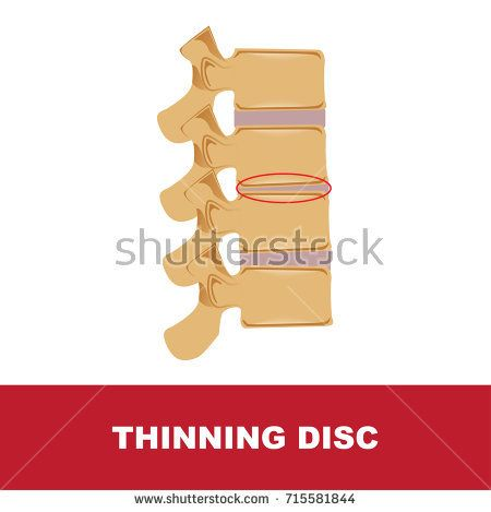 human disc degeneration. thinning disc