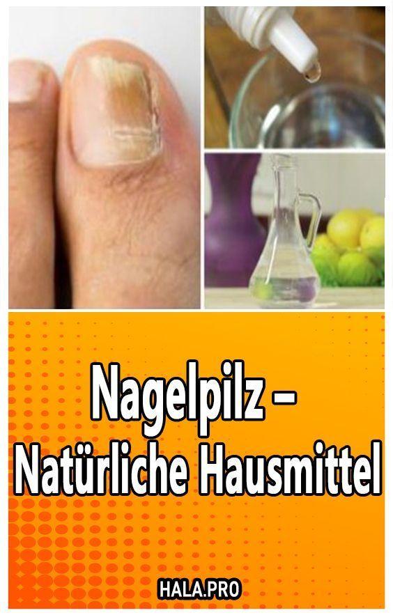 Nagelpilz – Natürliche Hausmittel – #Hausmittel #Nagelpilz #Natürliche
