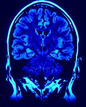 50 Brain Facts