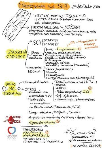 Elevación de troponinas sin SCA vía Cardioteca