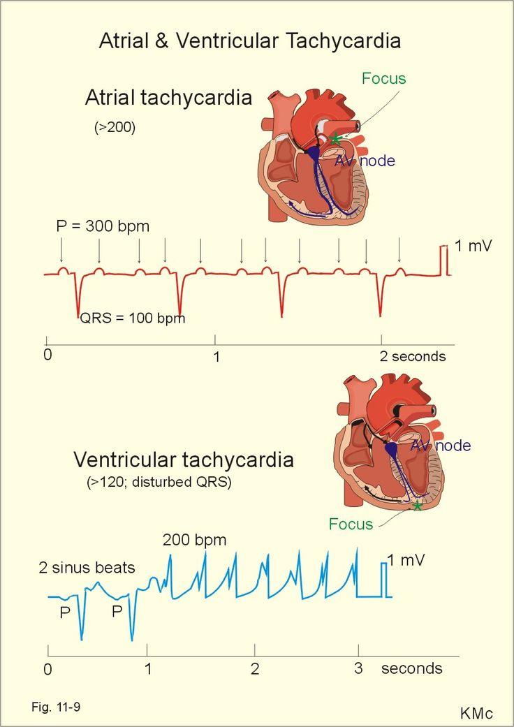 Atrial and Ventricular Tachycardia